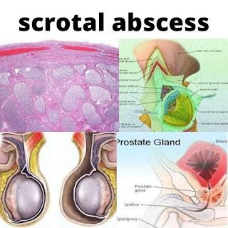 scrotal abscess