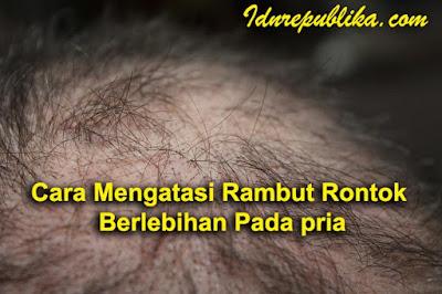 Cara Mengatasi Rambut Rontok Berlebihan Pada pria