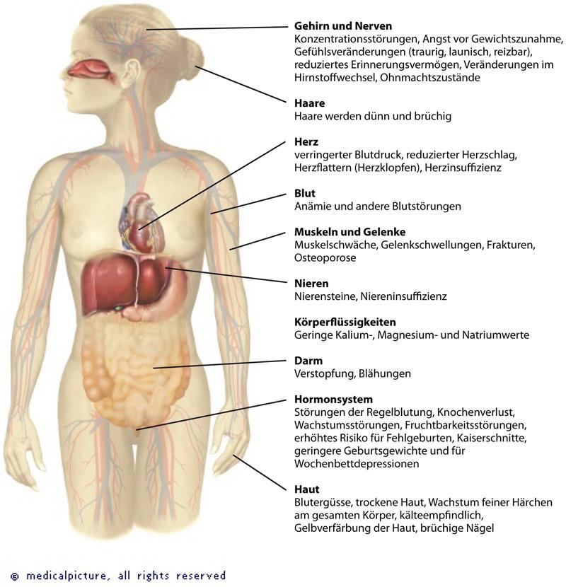 Folgen Von Magersucht