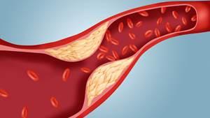 Obat Kolesterol Generik dan Paten