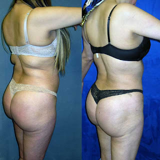 brazilian butt lift and rib removal