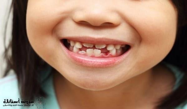 علاج تسوس اسنان الاطفال الرضع .