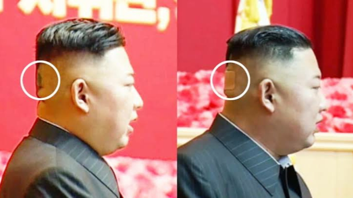 Headband, black spot...is North Korean dictator Kim Jong Un sick?