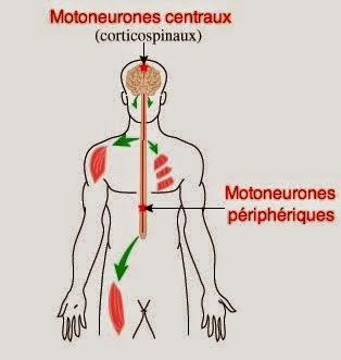sla infirmier causes etiologies mécanismes