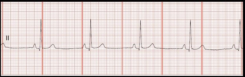 multifocal-atrial-pacemaker