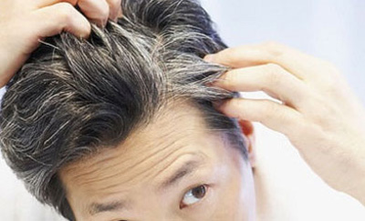 home remedy for white hair in young age tubetamil