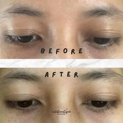 before-after-pakai-eye-serum-marigold-NPURE