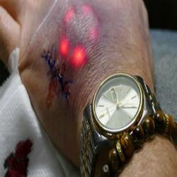 Primeiro brasileiro a implantar biochip na pele