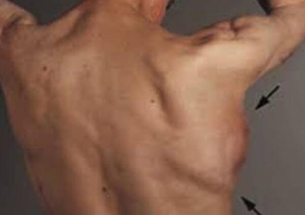 Ameliyat Hakkında İlginç Bilgiler - 9