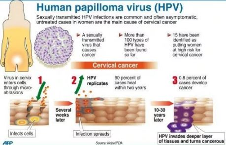 HPV genital warts Types and Causes Treatments - Health News