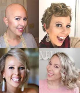 regrow hair after breast cancer ichhori