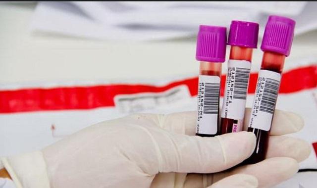 Caso do médico do HRR infectado pelo Coronavírus - Covid não deverá ser contabilizado no Vale do Ribeira