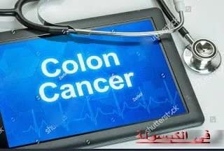 سرطان القولون واهم طرق علاجه