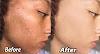 fast skin whitening tips home remedies in 1 day-rang gora karne ka tarika.