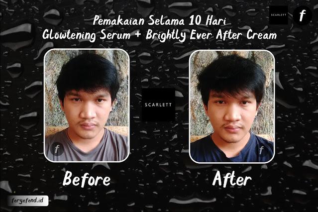 Before-After Penggunaan Glowtening Serum Scarlett