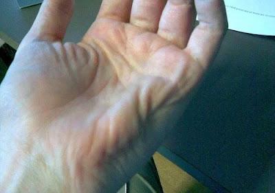combattre les Crampes musculaires