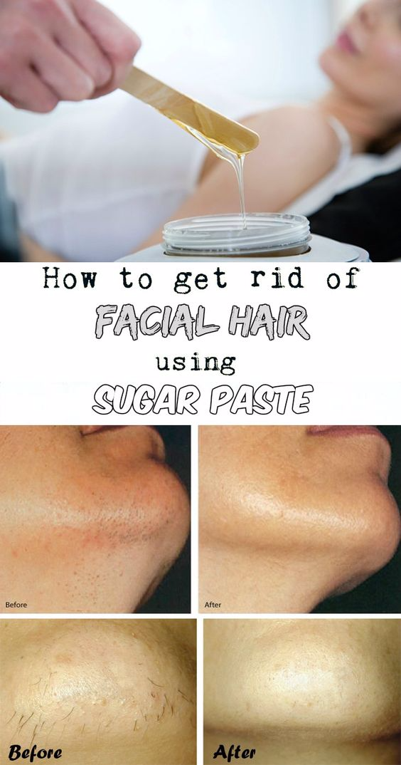 How to get rid of facial hair using sugar paste