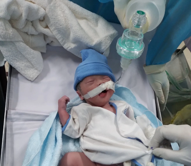 Bé trai nặng khoảng 2kg chào đời khi mẹ đang nằm hồi sức cấp cứu vì mắc COVID-19