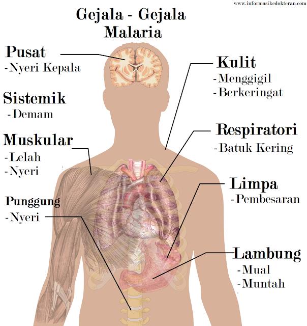 Malaria Nyamuk anopheles anopeles plasmodium falsiparum falciparum tertiana tropicana tropikana, punggung nyeri, nyeri kepala, lambung mual muntah, otot lelah, otot nyeri, demam, menggigil, berkerigat, sistemik, pusat