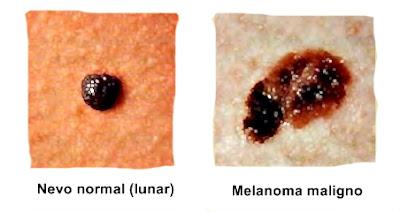 Cáncer de piel enfermedad problemas piel