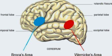 Lacunar stroke syndrome