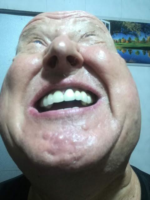 Dating kaveri Keltaiset hampaat