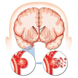 stroke trombotik
