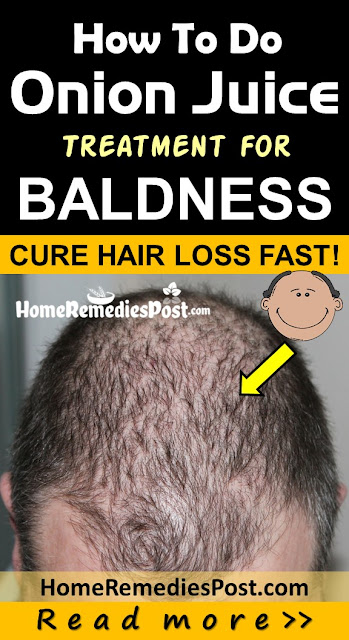 Onion Juice for Baldness, Fast Baldness Treatment, Home Remedies for Baldness, How To Get Rid Of Hair Loss, How To Get Rid Of Baldness, how to stop hair loss,