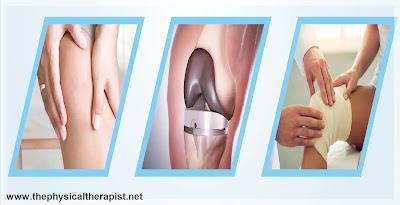 عملية تبديل مفصل الركبة : إجراء آمن لتخفيض الألم وزيادة الحركة