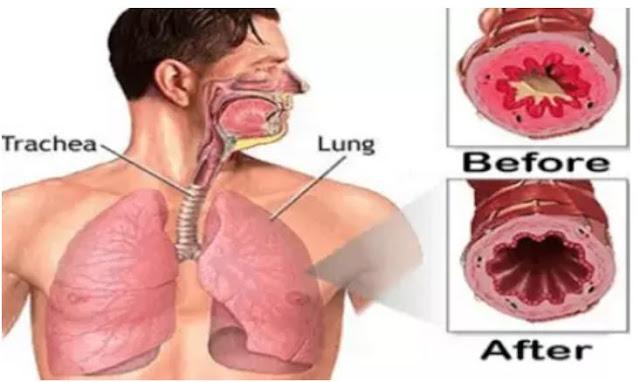 Cara Ampuh untuk Mengobati Batuk dan Tenggorokan Gatal secara Alami