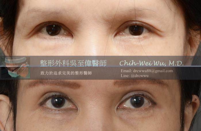 雙眼皮但鬆弛下垂的案例,接受眉下切皮手術後三個月