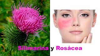 Silimarina y rosacea