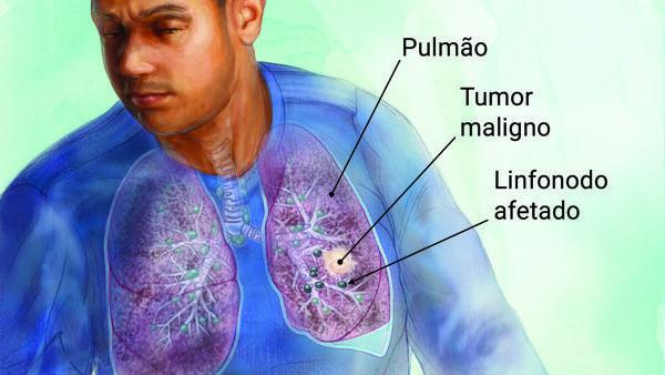 Estudo de Instituto norte-americano ilumina as origens do câncer de pulmão em não fumantes