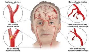 terapi stroke