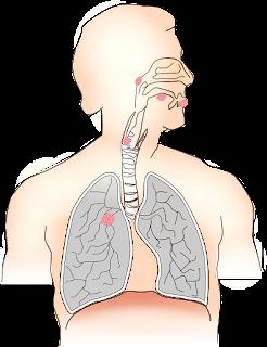علاج التهاب الشعب الهوائية بالاعشاب