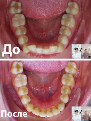 нижняя челюсть до и после ортодонтического лечения