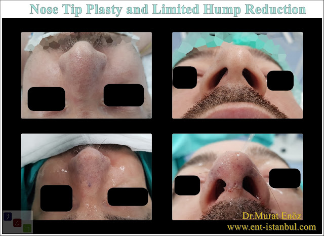Rhinoplasty without bone breaking in Turkey, Nose Job Without Touching The Bone in Istanbul,Nose aesthetic surgery without bone broken, Nose tip plasty in men, Hump reduction