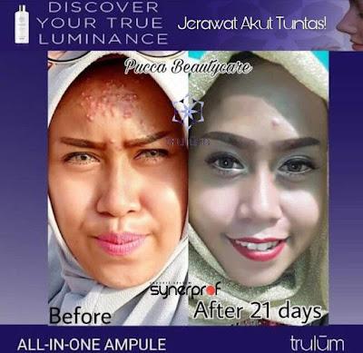 Jual Obat Penghilang Jerawat Trulum Skincare Cibuluh