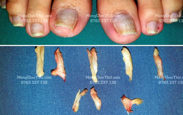 Tiểu phẫu móng chọc thịt điều trị triệt để