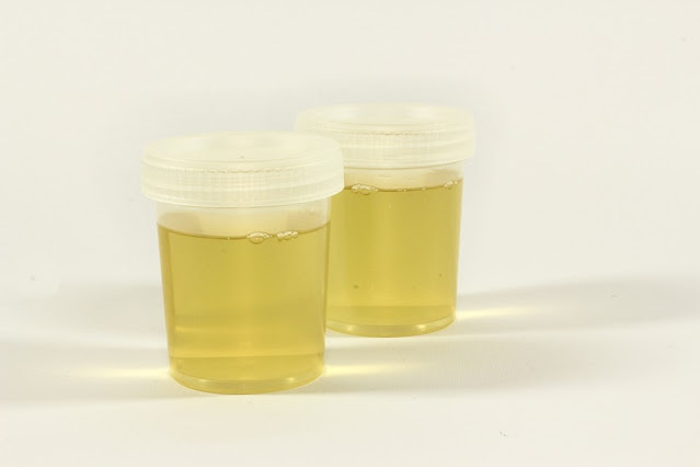 Want to Pass a Drug Test- Use Quick Fix Fake Urine