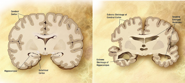 Comparison between Normal brain vs Alzheimer's brain