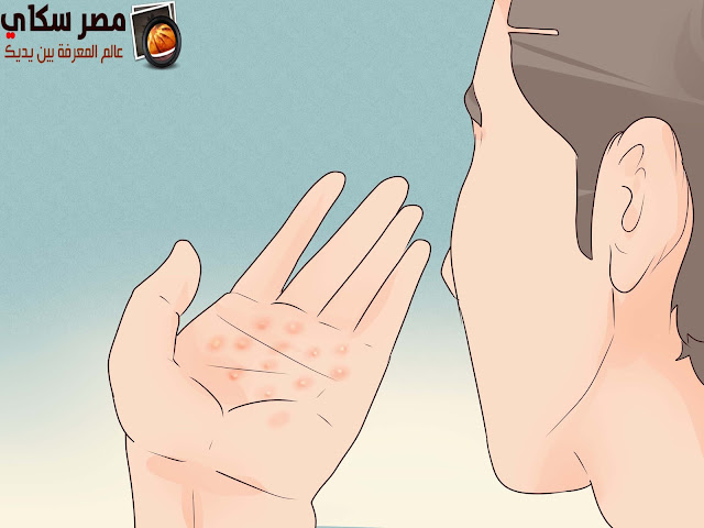 العرق ورائحته الكريهة و الأسباب والعلاج Smell of sweat