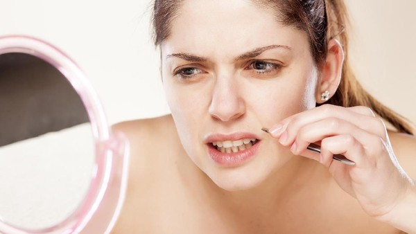 Hormon Testosterone penyebab wanita tumbuh misai??