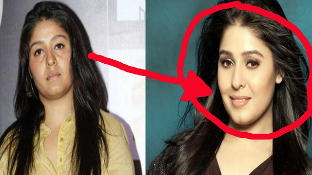 Sunidhi Chouhan Before Vs After