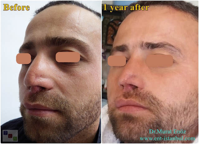 Complicated Revision Rhinoplasty, Revision Nose Job For Male, 8th Nose Operation