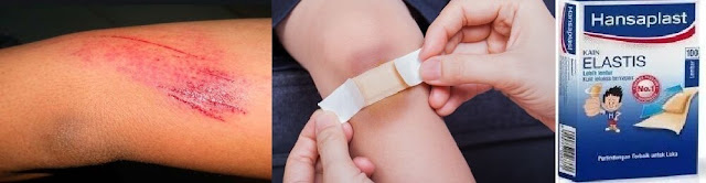 Pertolongan pada luka lecet