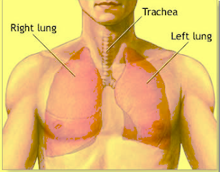 What Is Mesothelioma ?