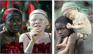Gambar 1 : Albinisme https://www.alodokter.com/albinisme