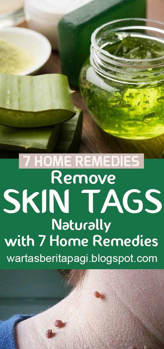 Remove Skin Tags Naturally with 7 Home Remedies | homemade remedies, natural remedies, Diet and nutrition, diet, healthy food, weight loss, nutrition, medical, ketogenic diet, low carb recipes, medical treatment, natural remedies, healthy drink. #skintagsremoval #homeremedies #healthyskin #naturalremedies