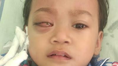 Masih ingat Bocah Penderita Kanker Mata dari Bonggakaradeng, Begini Kondisinya Sekarang